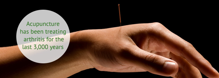 acupuncture for arthritis