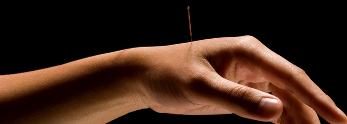 acupuncture - what to expect